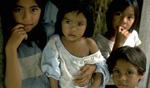 Guatemala-malnutrition