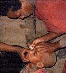 ethiopia-kossoye